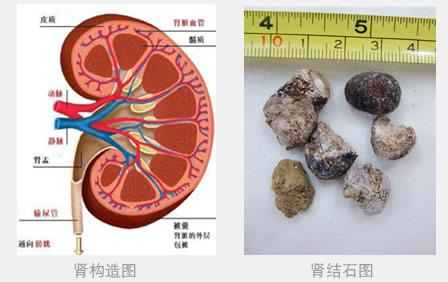 双肾结石的病因有哪些
