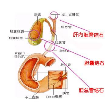 肝内胆管结石治疗原则