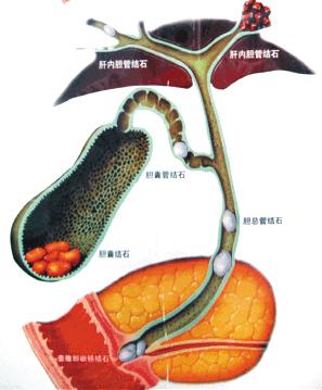 肝内胆管结石如何治疗